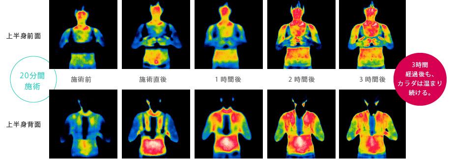 上半身前面・上半身背面のインディバの施術を20分行った場合。施術後、約3時間経過した後も身体が温まり続けているという結果が証明されています。